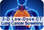 3-D Low-Dose CT Lung Cancer Screening